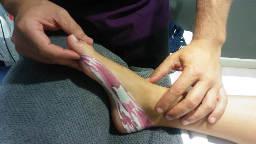 Kinesiotape  especialistas en deporte osteopatía Algete fisioterapia algete fisiopilates Marmande